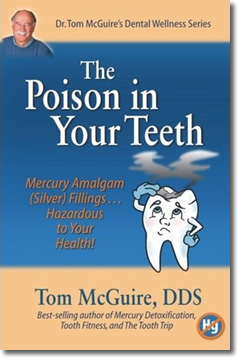Amalgam Dental Fillings: The Poison in our Teeth